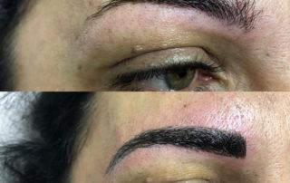 Riempimento sopracciglia con microblanding tecnica pelo pelo